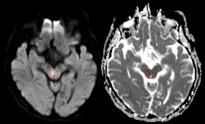 Frische Ischaemie im Nucleus nervi oculomotorii rechts