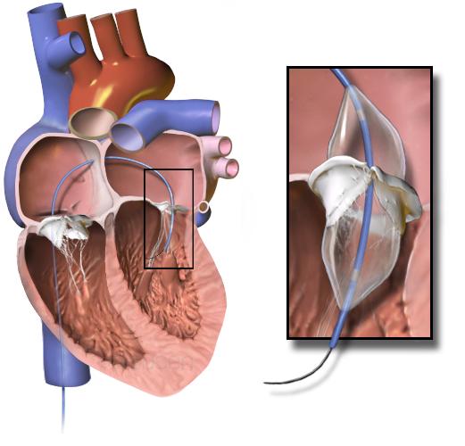 Herzklappenrekonstruktion
