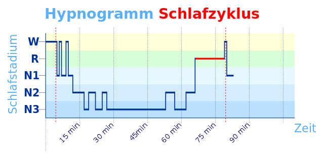 Hypnogramm