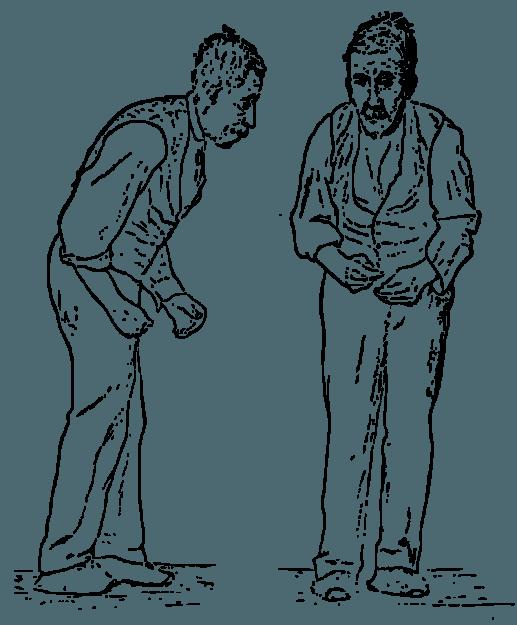 Körperhaltung Parkinson