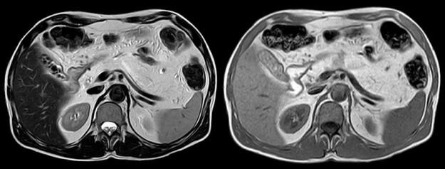 Komplette lipomatöse Umwandlung des Pankreas bei einem 45-jährigen Mukoviszidosepatienten
