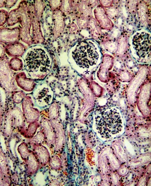 Lichtmikroskopisches Schnittbild der Nierenrinde