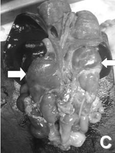 Nebennierenrinde-hyperplasie