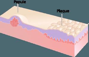 Papula und Plaque
