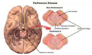 Parkinsonerkrankung