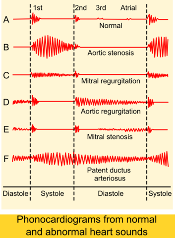 Phonocardiograms from normal and abnormal heart sounds