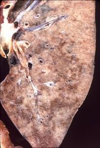 Pneumocystis jeroveci Pneumonie