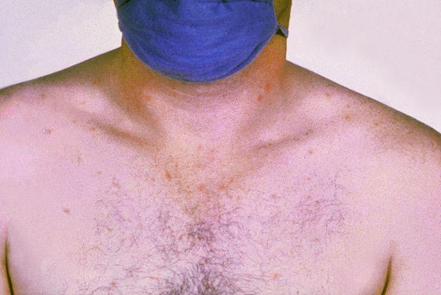 Durchfall Diarrhoe Ursachen Symptome Arten