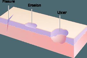 Ulkus und Erosion