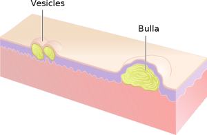 Vesikel und Bulla