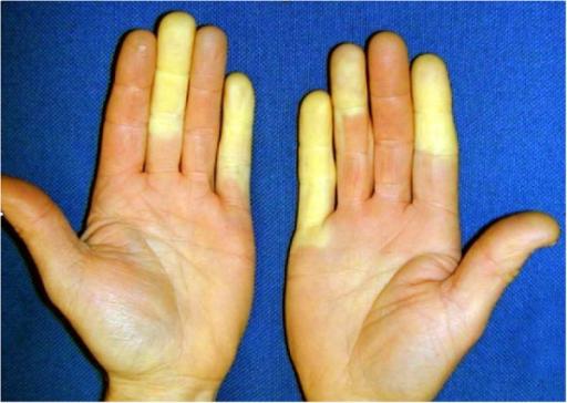 Weiße Finger durch Vibration