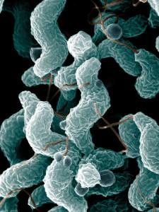 image shwoing campylobacter jejuni