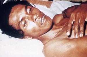 cholera-patient