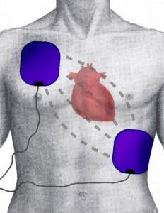diese abbildung zeigt wo elektroden angebracht werden muessen