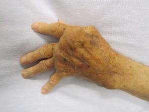 ulnare Deviation der Finger