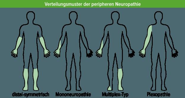 verteilungsmuster neuropathie