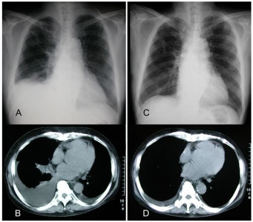 Successful management of refractory pleural effusion due to systemic immunoglobulin light chain amyloidosis by vincristine adriamycin dexamethasone chemotherapy