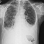 Medical X-rays.