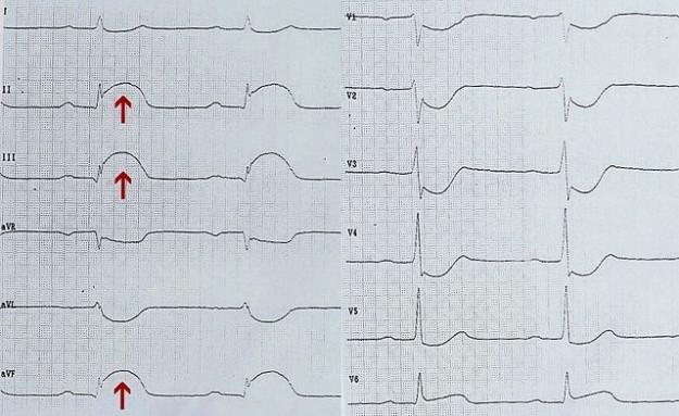 EKG eines akuten diaphragmalen Infarkts (Pfeile: ST-Hebung in II, III und aVF)
