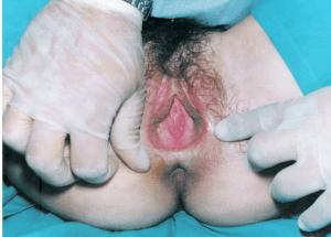 Agenesia-vagina