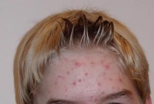 Akne auf der Stirn eines Teenagers