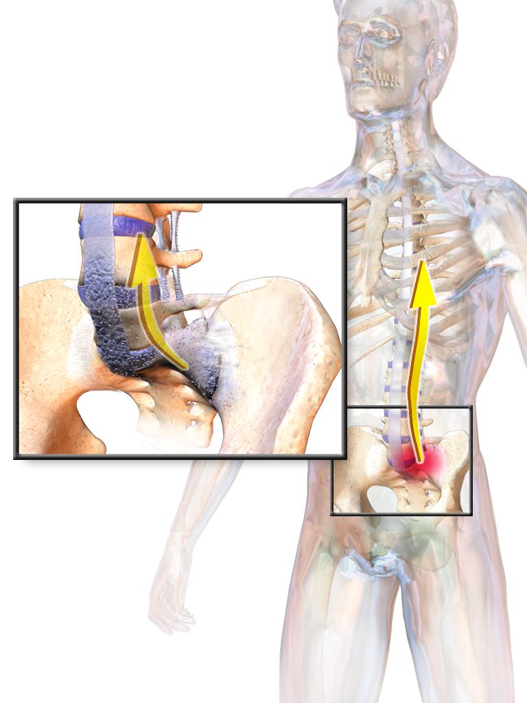 Morbus Bechterew – Alles über Spondylitis ankylosans