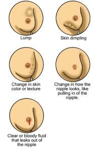 Anzeichen von Brustkrebs