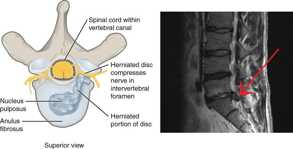 Wirbelsäule – Grundlagen der Anatomie