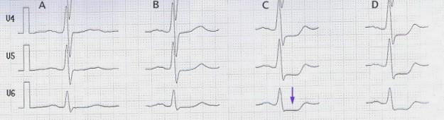 Belastungs-EKG mit ST-Senkung (Pfeil) ab 100 W (Spalte C)