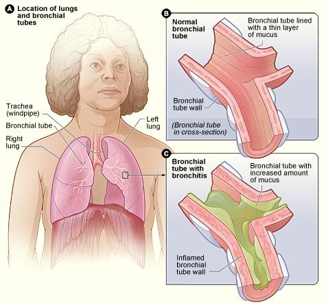 Bronchitis – Schema