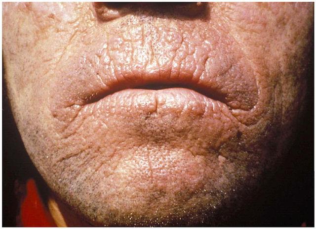 Foto chronischer Hautveränderungen bei erythropoetischer Porphyrie