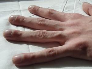 Clubbing-Finger-Mukoviszidose