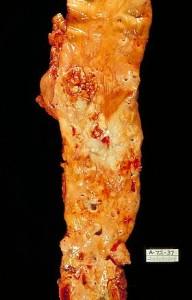 Die morphologischen Veränderungen bei Arteriosklerose am Beispiel einer eröffneten Aorta. Sektionspräparat von innen.