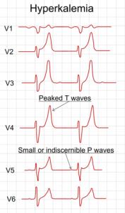 EKG bei einer Hyperkaliämie