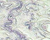 Elastische Fasern erscheinen in blau-violetter Farbe