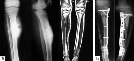 Ewing's sarcoma of proximal one-third diaphysis of right tibia