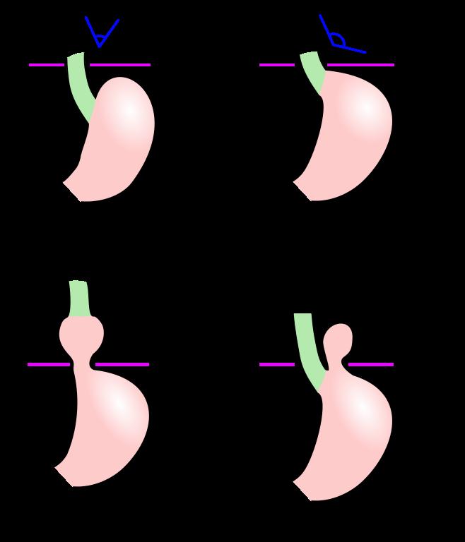 Kleine axiale hernie