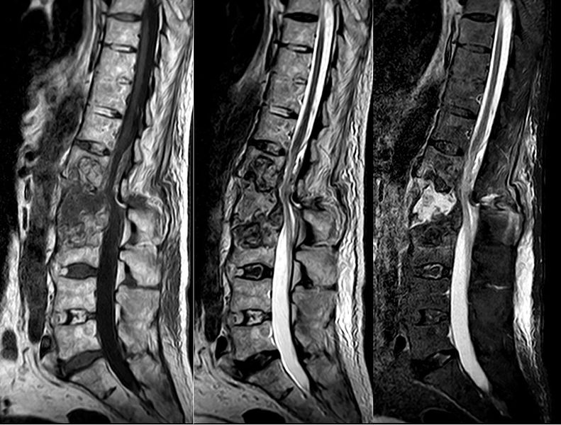 Fraktur des 2. Lendenwirbels bei einem alten Patienten mit Morbus Bechterew. Die Fraktur betrifft alle drei Säulen und ist instabil. Dieser Frakturtyp ist nicht untypisch bei Morbus Bechterew.