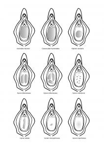 Verschiedene-Formen-des-Hymens