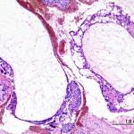 Histologisches Bild einer Blasenmole. HE-Färbung