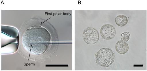 Intrazytoplasmatische Spermieninjektion