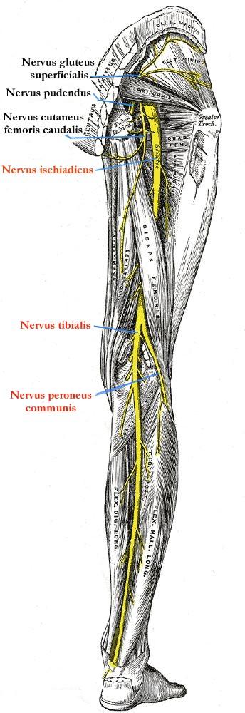 Nervus ischiadicus-Liäson – Ursache, Diagnose & Therapie