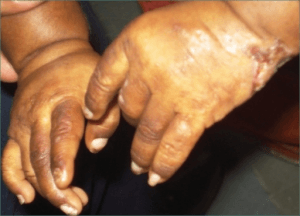 Photograph showing presence of lesions and scars on both hands of patient with congenital porphyria