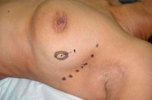 Rekonstruktuion Brust
