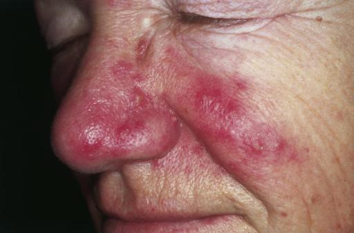 Hodensack verstopfte talgdrüse Talgdrüsenentzündung oder