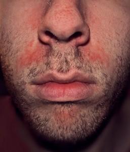Seborrhoische Dermatitis bei einem Mann