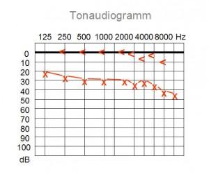 Tonaudiogramm Schallleitungsstörung
