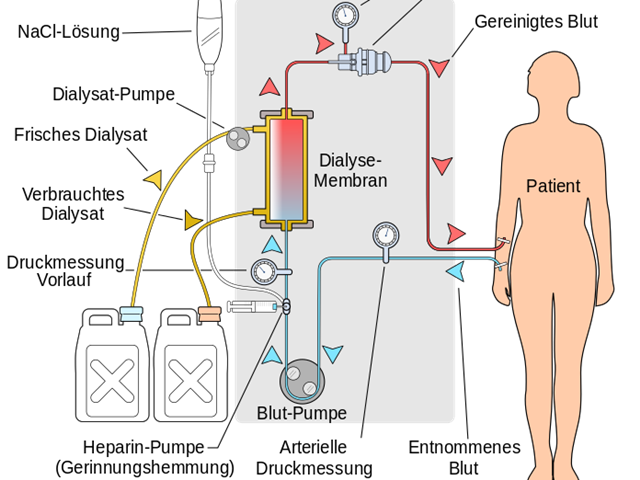 Nierenversagensdiät