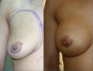 brustvergroesserung-vor-und-nach-op