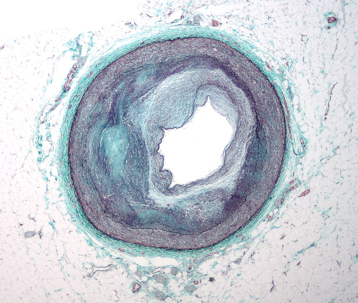 das ist die mikrografie einer Arteriosklerose